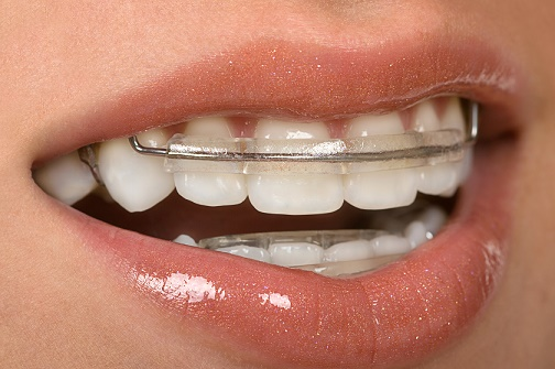 teeth, health,smile,dentist,dentalhealth, oralhealth,